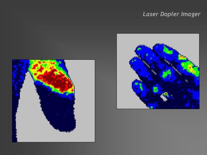 Laser Dopler Imager