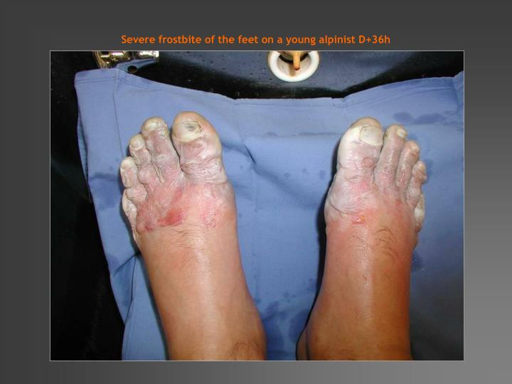 Severe frostbite of the feet on a young alpinist D+36h