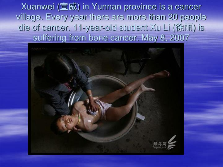 Xuanwei (宣威) in Yunnan province is a cancer village. Every year there are more than 20 people die of cancer. 11-year-old student Xu Li (徐丽) is suffering from bone cancer. May 8, 2007