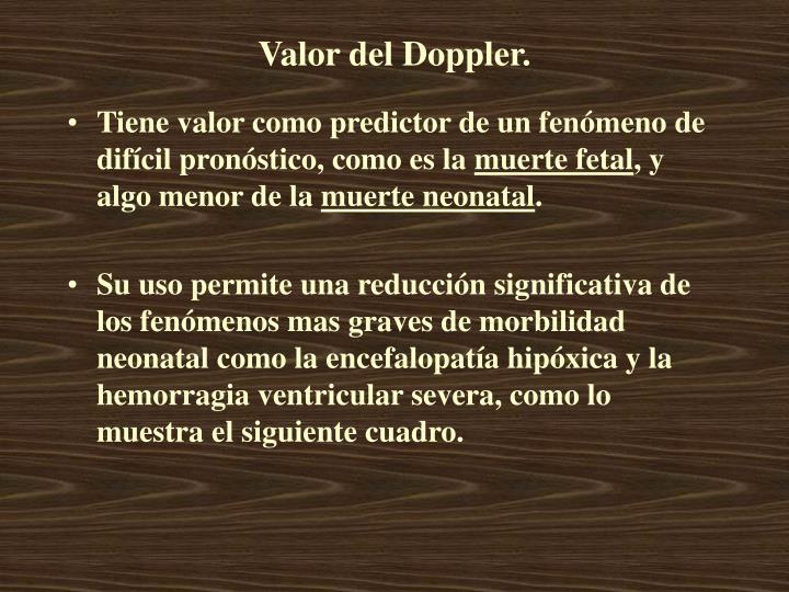 Valor del Doppler.