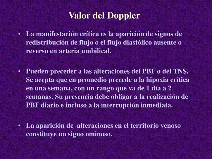 Valor del Doppler