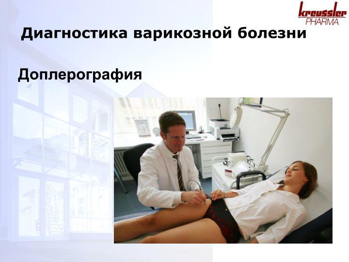 Диагностика варикозной болезни