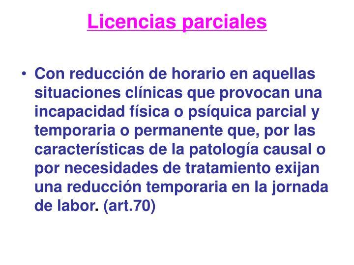 Licencias parciales