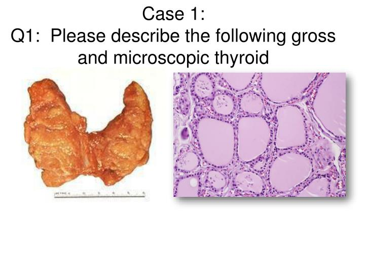 Case 1 q1 please describe the following gross and microscopic thyroid