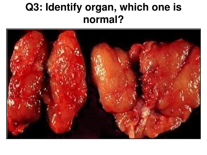 Q3: Identify organ, which one is normal?