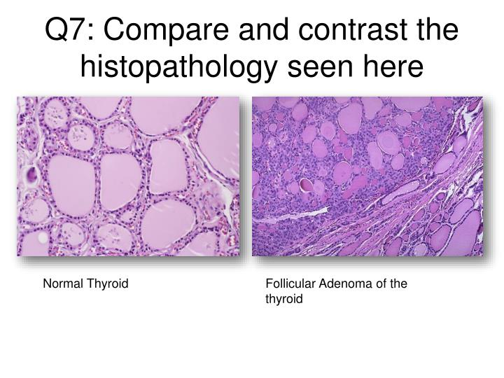 Q7: Compare and contrast the histopathology seen here