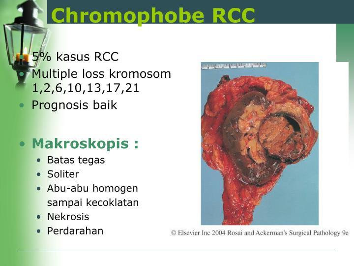 Chromophobe RCC