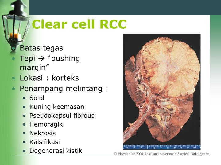 Clear cell RCC