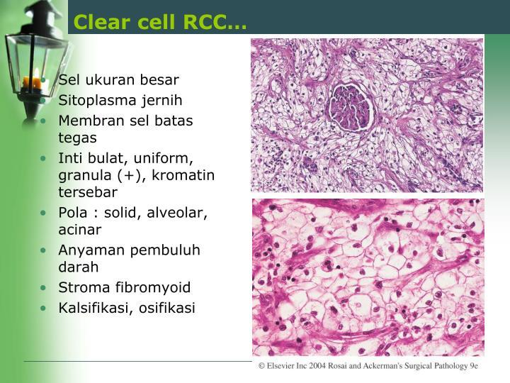 Clear cell RCC…