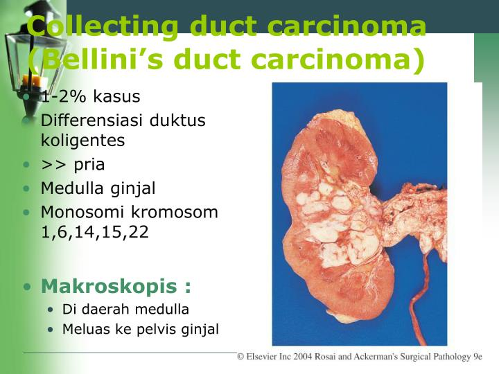 Collecting duct carcinoma (Bellini's duct carcinoma)
