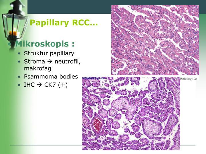 Papillary RCC…