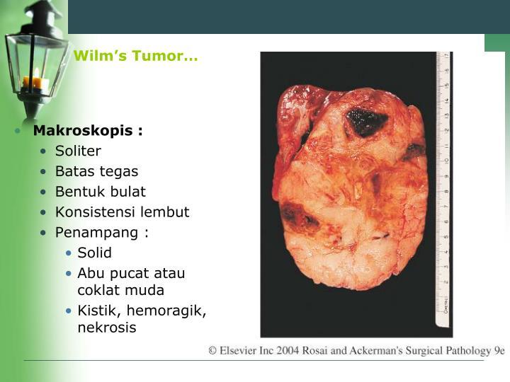Wilm's Tumor…