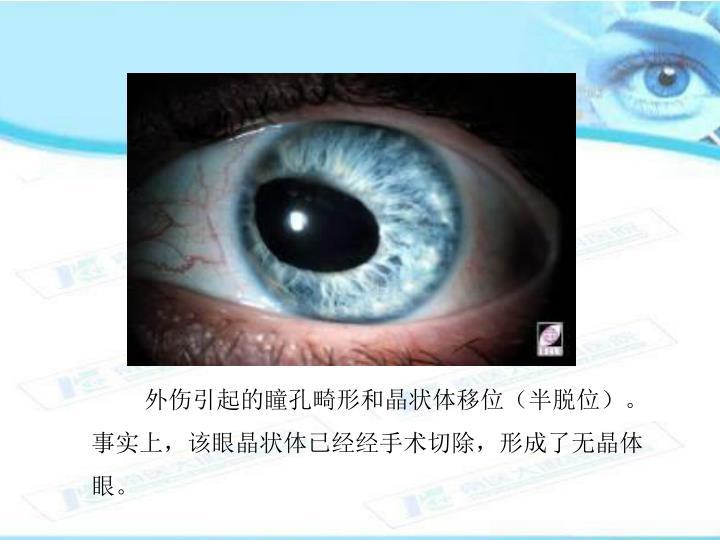 外伤引起的瞳孔畸形和晶状体移位(半脱位)。事实上,该眼晶状体已经经手术切除,形成了无晶体眼。