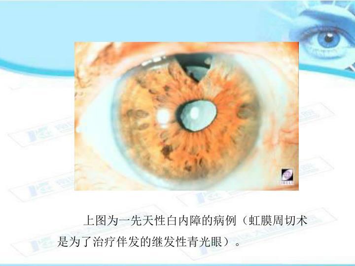 上图为一先天性白内障的病例(虹膜周切术是为了治疗伴发的继发性青光眼)。