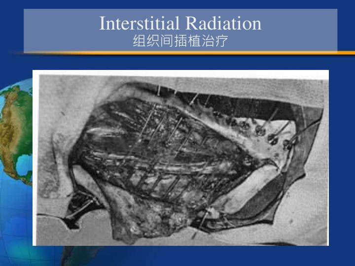 Interstitial Radiation