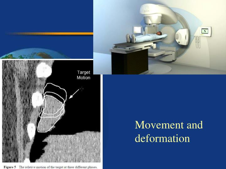 Movement and deformation