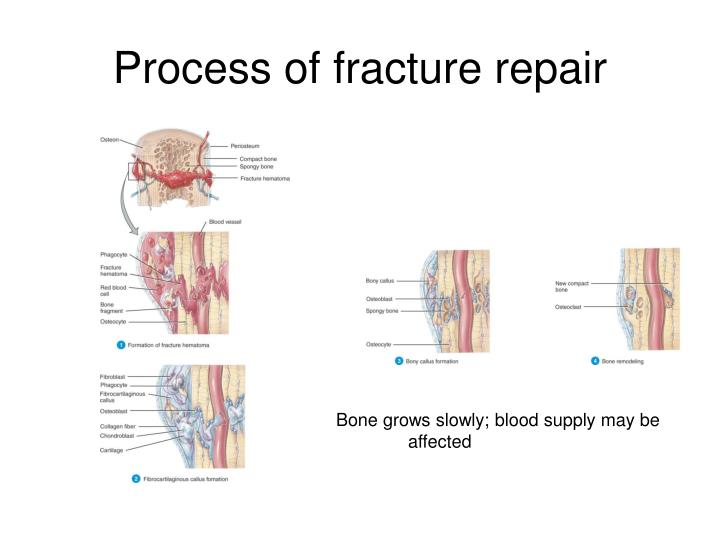 Process of fracture repair
