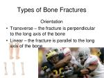 types of bone fractures2