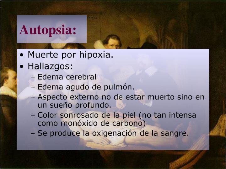 Autopsia: