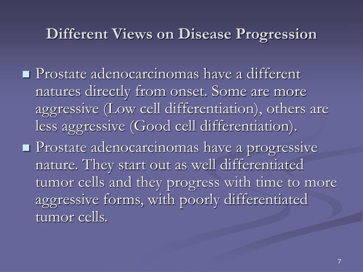 Different Views on Disease Progression