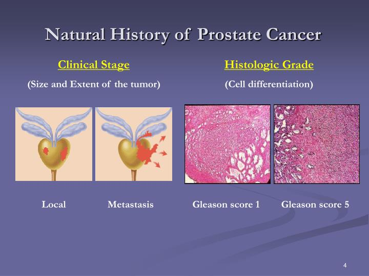 Natural History of Prostate Cancer