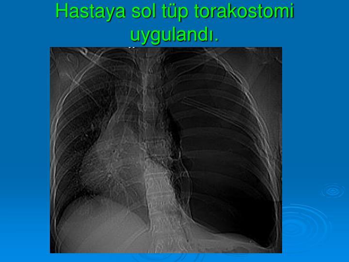 Hastaya sol tp torakostomi uyguland.
