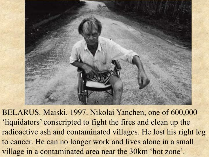 BELARUS. Maiski. 1997. Nikolai Yanchen, one of 600,000 'liquidators' conscripted to fight the fires and clean up the radioactive ash and contaminated villages. He lost his right leg to cancer. He can no longer work and lives alone in a small village in a contaminated area near the 30km 'hot zone'.