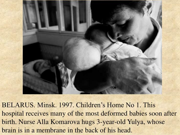 BELARUS. Minsk. 1997. Children's Home No 1. This hospital receives many of the most deformed babies soon after birth. Nurse Alla Komarova hugs 3-year-old Yulya, whose brain is in a membrane in the back of his head.