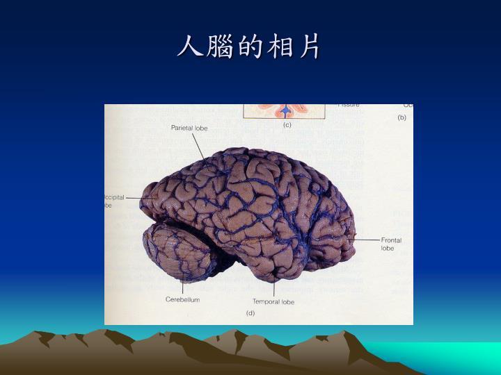 人腦的相片