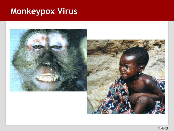 Monkeypox Virus