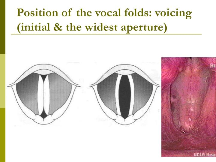Position of the vocal folds: voicing (initial & the widest aperture)