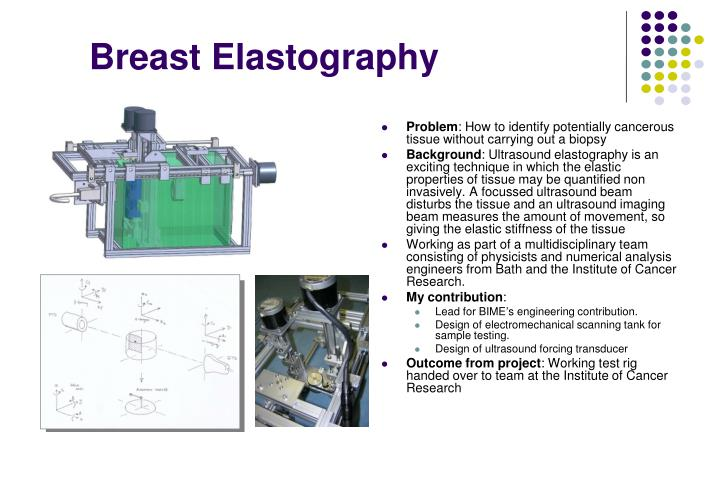 Breast Elastography
