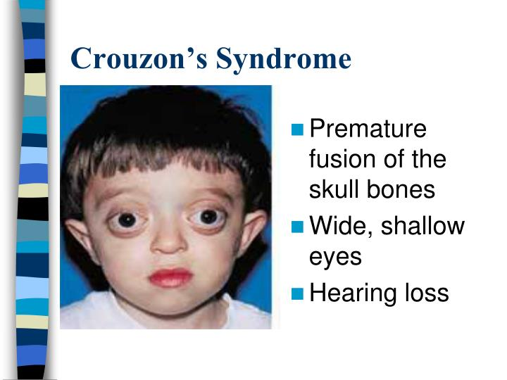 Crouzon's Syndrome