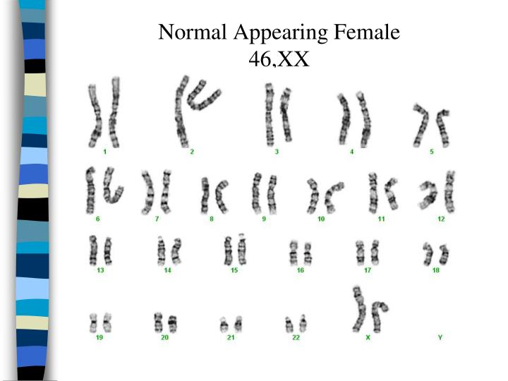 Normal Appearing Female