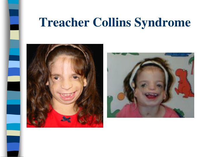 Treacher Collins Syndrome