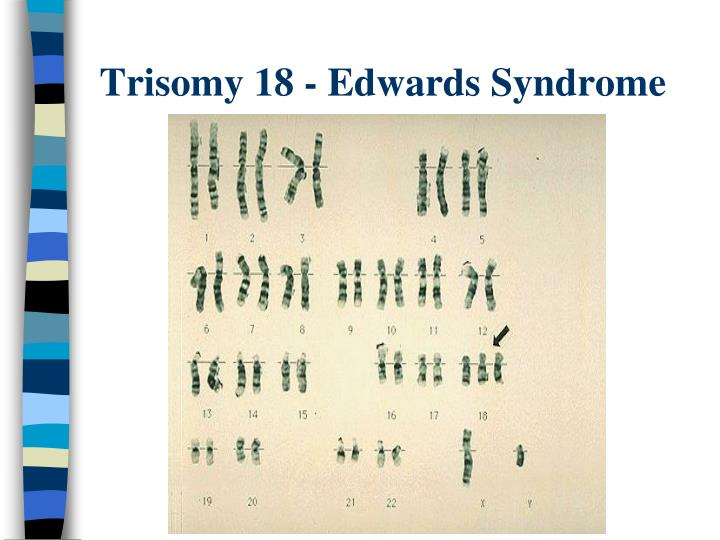 Trisomy 18 - Edwards Syndrome