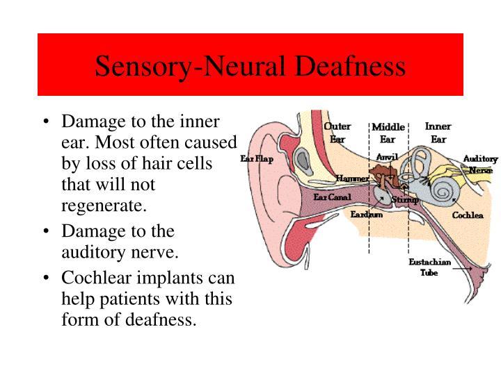 Sensory-Neural Deafness