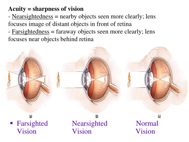 Acuity = sharpness of vision