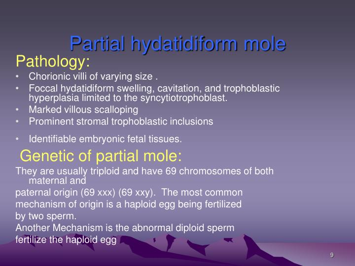 Partial hydatidiform mole