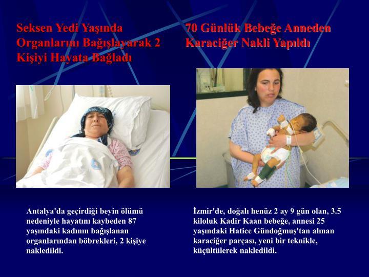 70 Günlük Bebeğe Anneden Karaciğer Nakli Yapıldı
