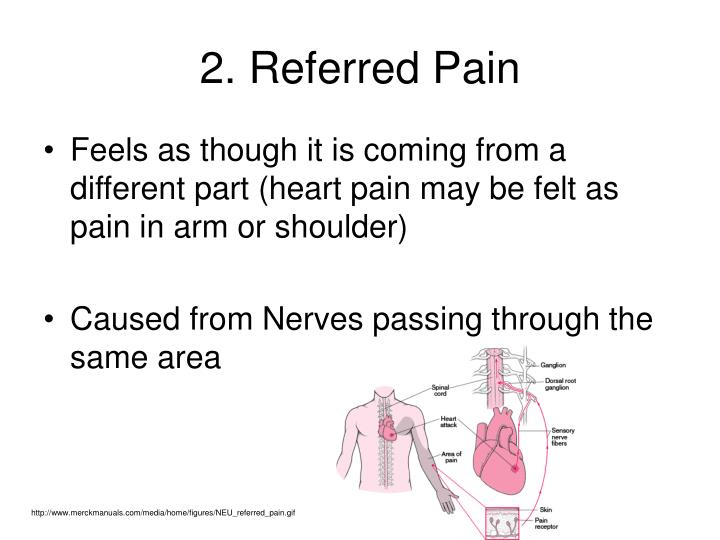 2. Referred Pain