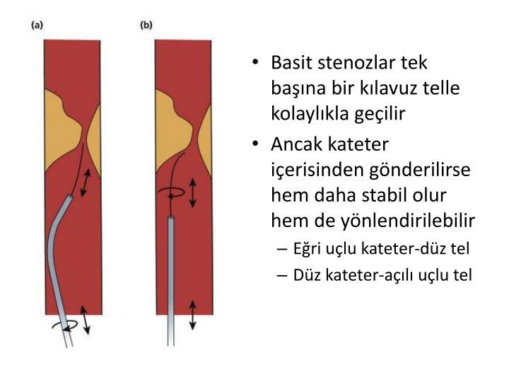 Basit stenozlar tek başına bir kılavuz telle kolaylıkla geçilir