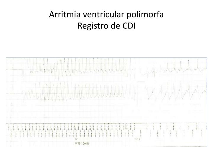 Arritmia ventricular polimorfa