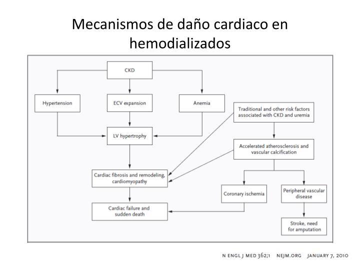 Mecanismos de daño cardiaco en hemodializados