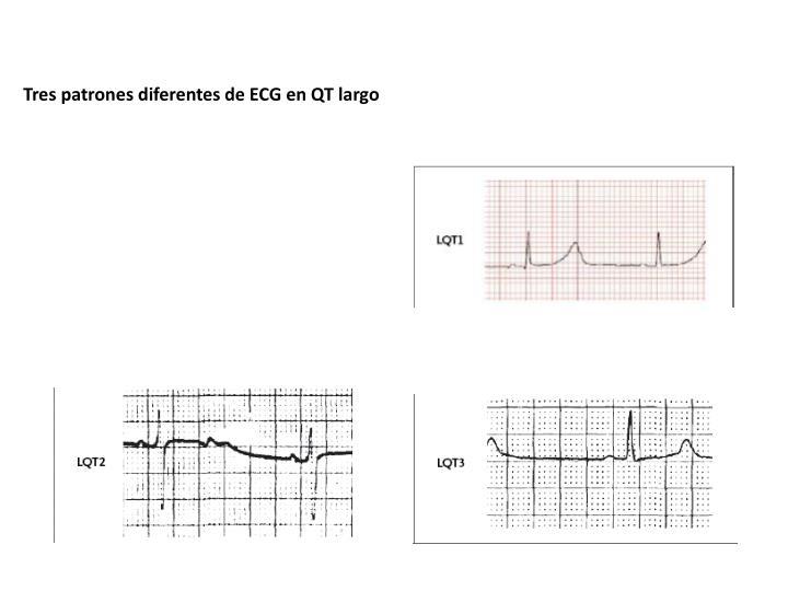 Tres patrones diferentes de ECG en QT largo