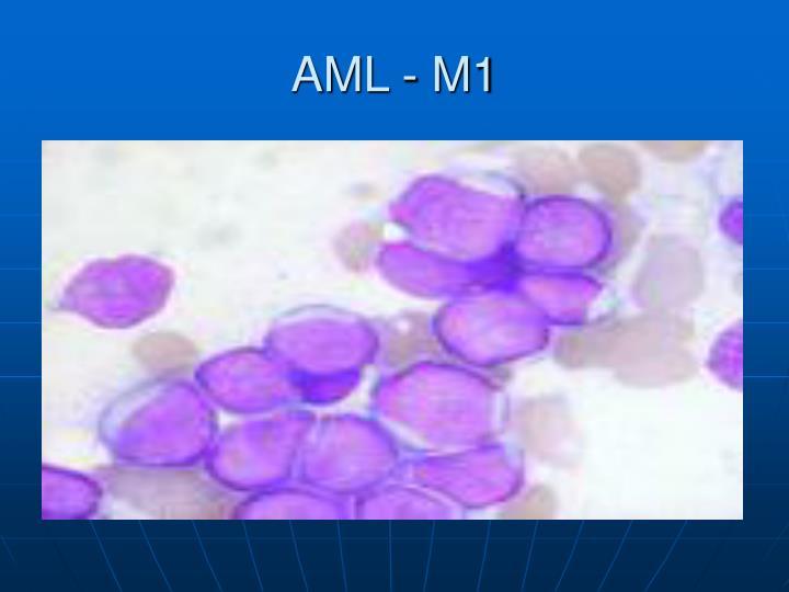 AML - M1