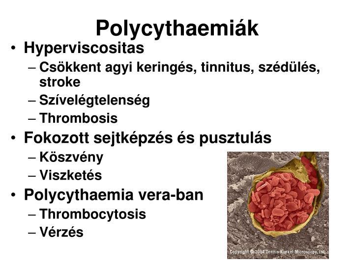 Polycythaemiák