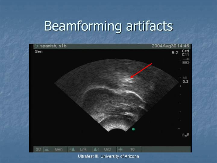 Beamforming artifacts