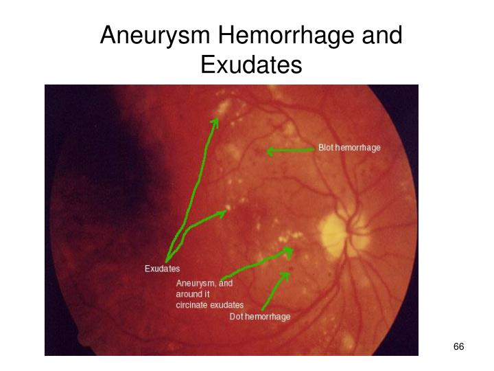 Aneurysm Hemorrhage and Exudates