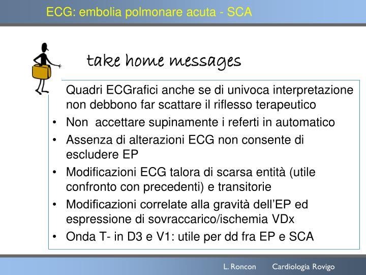 ECG: embolia polmonare acuta - SCA